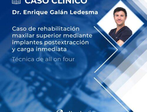 Caso clínico | Rehabilitación maxilar